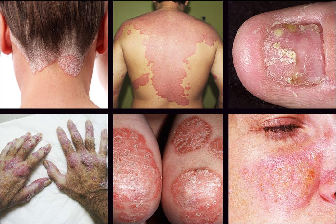 Types-of-Psoriasis